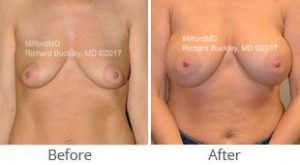 MilfordMD Skin Care Product Line | Breast Augmentation Silicone Implants