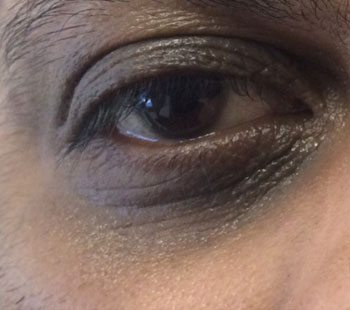 Before Eye Therapy 236