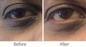 MilfordMD Skin Care Product Line | Eye Therapy 236