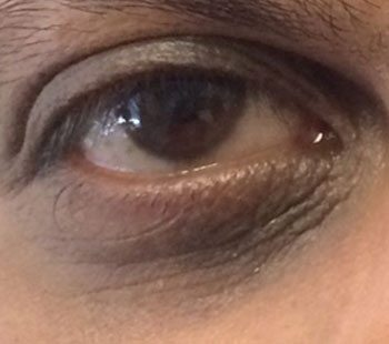 After Eye Therapy 236