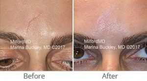 MilfordMD Skin Care Product Line | Facial Scar Removal