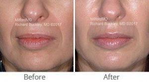 MilfordMD Skin Care Product Line   Filler Juvederm Restylane Lips Nasolabial Folds Before After