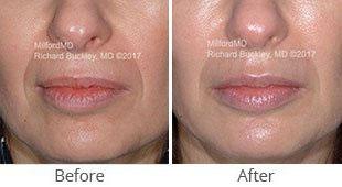 MilfordMD Skin Care Product Line | Filler Juvederm Restylane