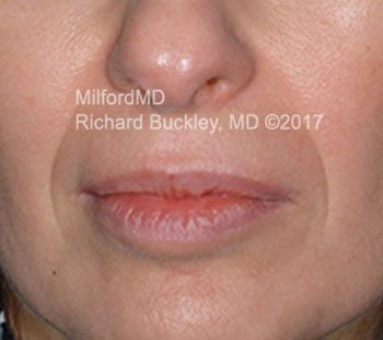 Before Lip & Perioral Filler