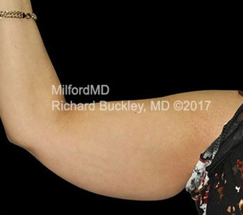 Before Laser Liposuction Arm Right