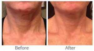 MilfordMD Skin Care Product Line | Neck Therapy 238