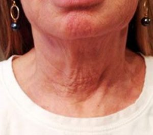 MilfordMD Skin Care Product Line | Neck Therapy 239 After