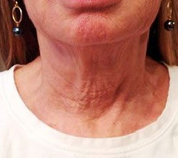 After Neck Therapy 239