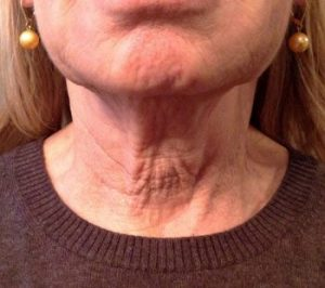 MilfordMD Skin Care Product Line | Neck Therapy 239 Before