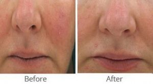 MilfordMD Skin Care Product Line   Skin Calm 235 Before After