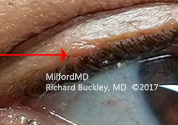 After Upper Eyelid Growth Removal