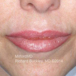 Juvederm Lip Augmentation Case #35990 - After Photo