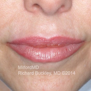 Juvederm Lip Augmentation Case #35990 - After Photo