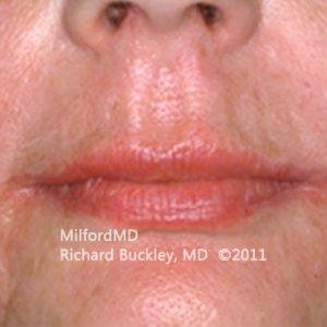 Lip Augmentation Case #36127 - After Photo