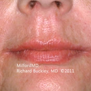 Lip Augmentation Case #36127 - After Photo