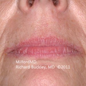 Lip Augmentation Case #36127 - Before Photo