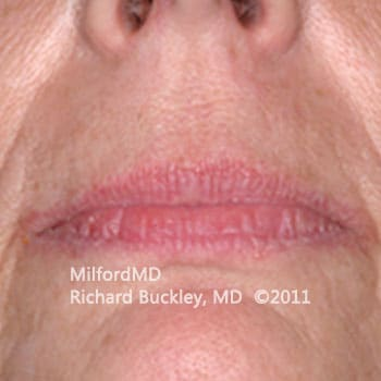 Lip Augmentation Case #36127 - Before Photo