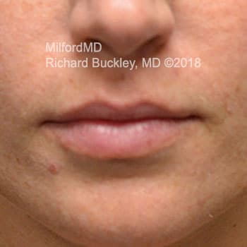 Restylane Lip Augmentation Case #36138 - Before Photo