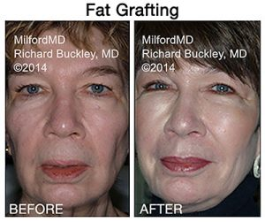 Before and after image of Dr. Richard E. Buckley's client of a fat transfer to the face procedure.