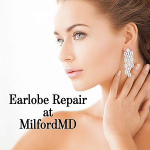Earlobe repair surgery by Dr. Richard E. Buckley