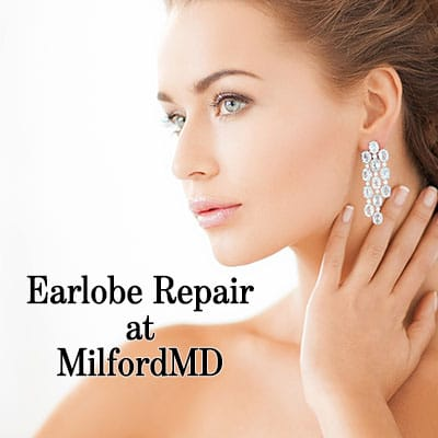 Earlobe repair surgery by Dr. Richard E. Buckley