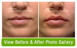 Before & After Lip Filler Treatments