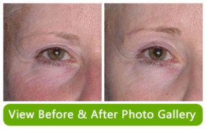 Before and After Photo Gallery of Non-Surgical Brow Lifts