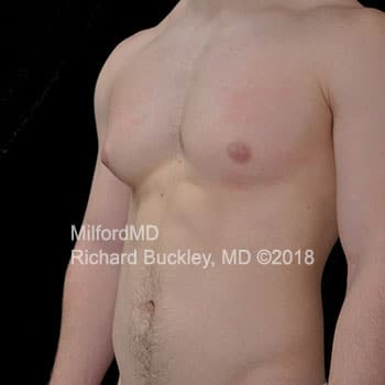 Gynecomastia Surgery Before Photo
