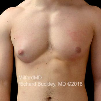 Gynecomastia Surgery Before Photo