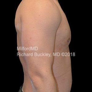 Gynecomastia Surgery After Photo Case #62520