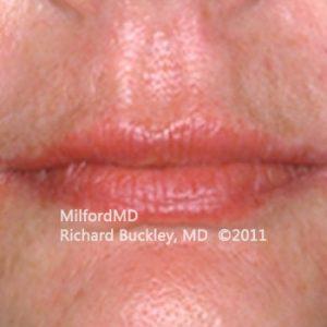 After Lip Augmentation Case #36127