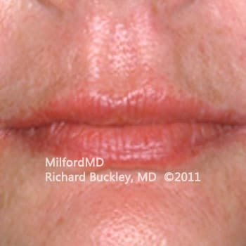 After Lip Augmentation Case #36127
