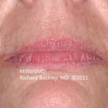 Before Lip Augmentation Case #36127