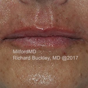 After Photo of Lip Augmentation at MilfordMD