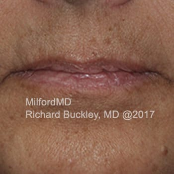 Before Photo of Lip Augmentation at MilfordMD