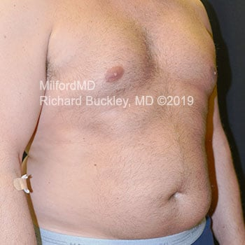 Before Male LipoSculpture