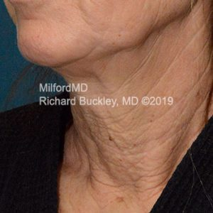 Before Photo of Surgical Neck Lift