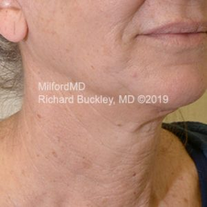After Photo of Surgical Neck Lift