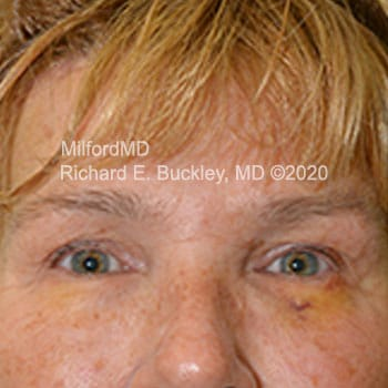 After Temporal Brow Lift