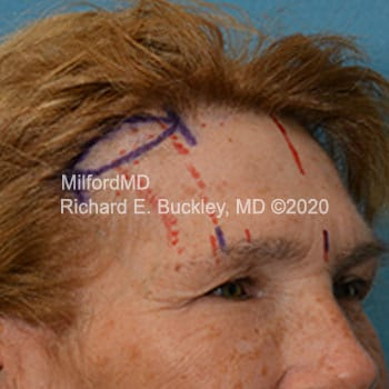 Before Temporal Brow Lift