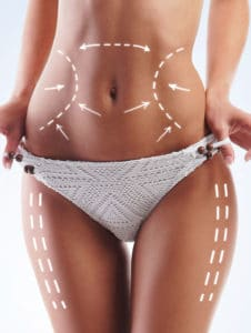 Is laser lipo as effective as liposuction?