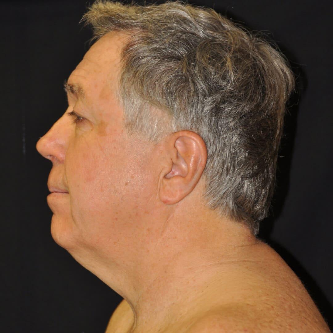 Before: NECK LASER Liposuction – CASE #16600