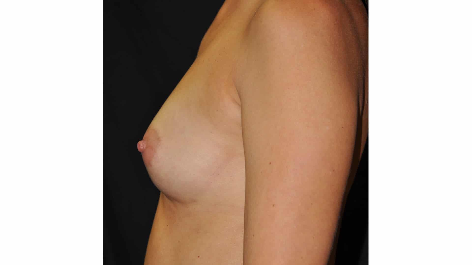 BREAST AUGMENTATION – CASE #35676