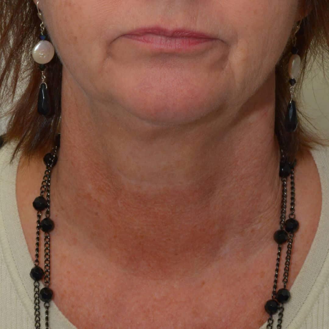 Laser Neck Liposuction