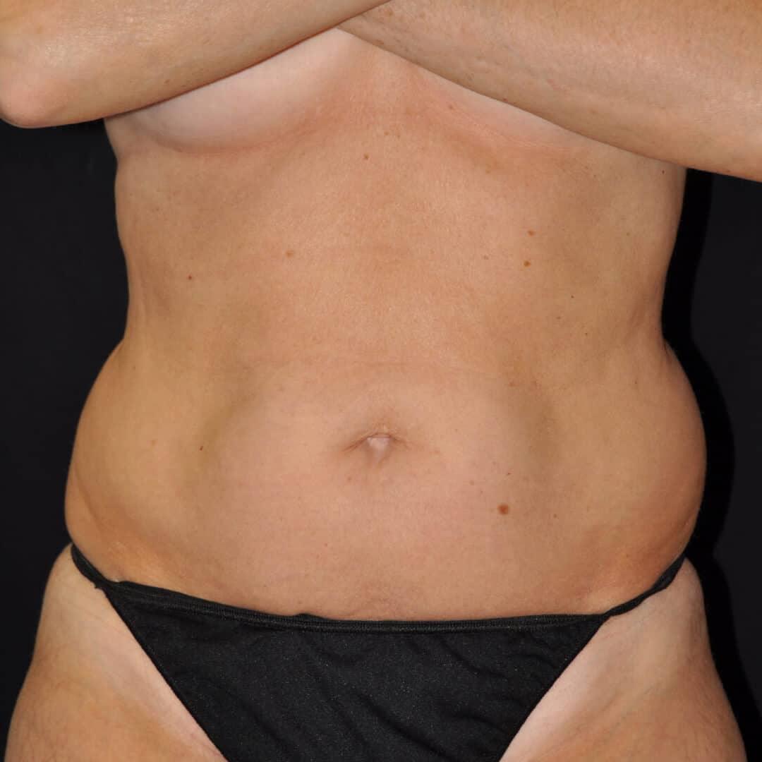 , Laser Liposuction