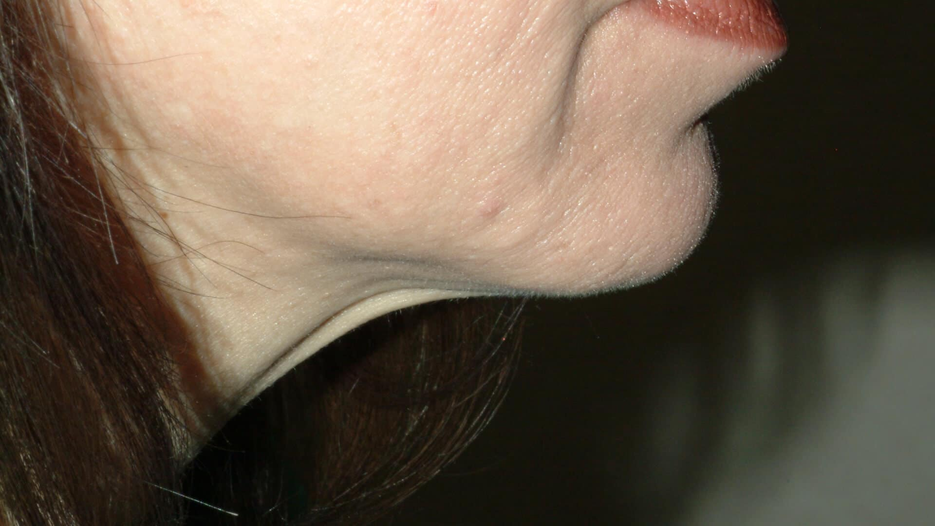 NECK LASER Liposuction – CASE #35713