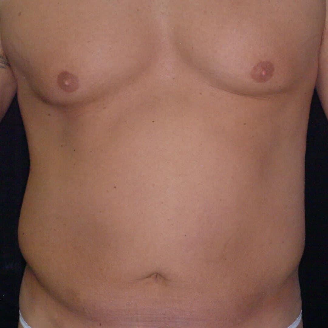 Laser Liposuction