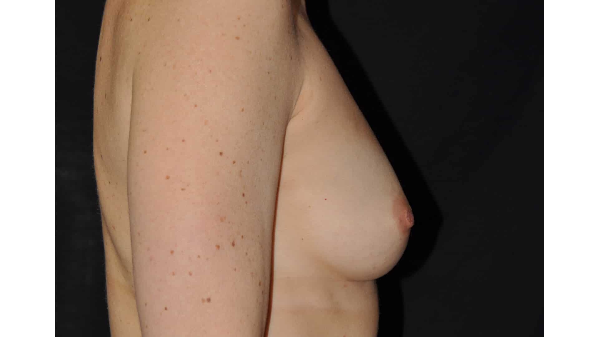 Before: BREAST AUGMENTATION AFT – CASE #35722