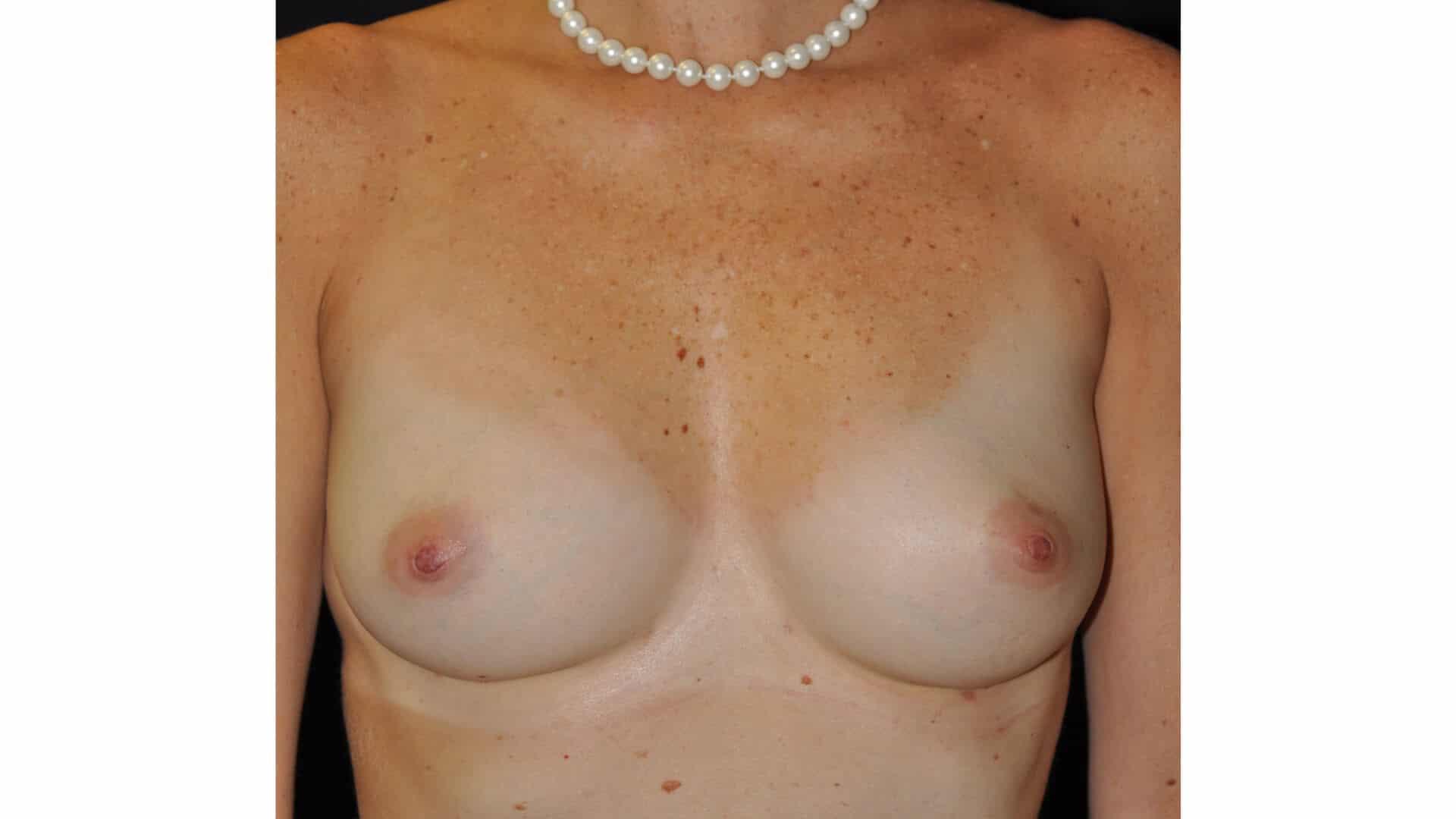 , Breast Augmentation – AFT