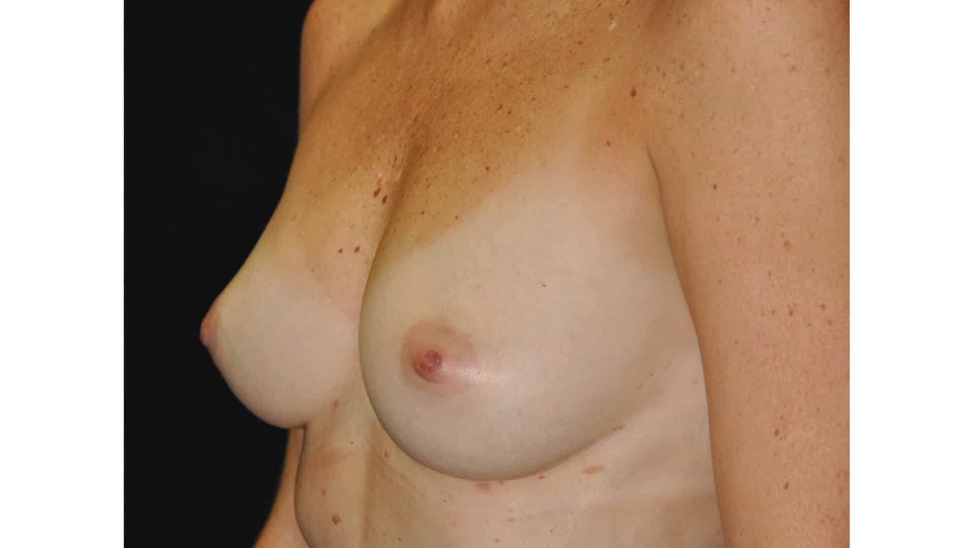 After: BREAST AUGMENTATION AFT – CASE #35722